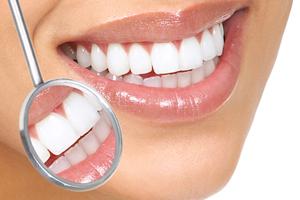 Отбеливания зубов в домашних условиях
