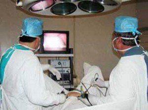 Удаления папиллом хирургическим путем