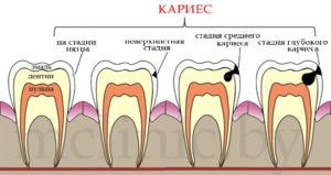 Как появляется кариес зубов