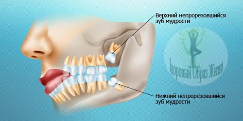 Зуб мудрости удалять или лечить?