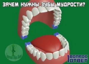 Зубы мудрости считаются рудиментом